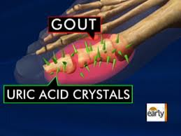 gout pain no inflammation food chart for gout patients what food to avoid for gout sufferers