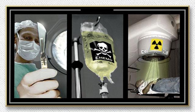 surgery-chemo-radiation